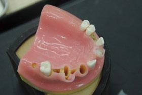 審美領域における多数歯欠損症例の対処