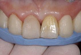臨床審美歯科 session1