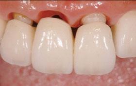 臨床審美歯科session2